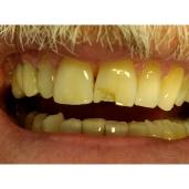 Mere Dental Practice Aug 2018 (4)